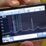 Smartphone alerta problemas cardiacos